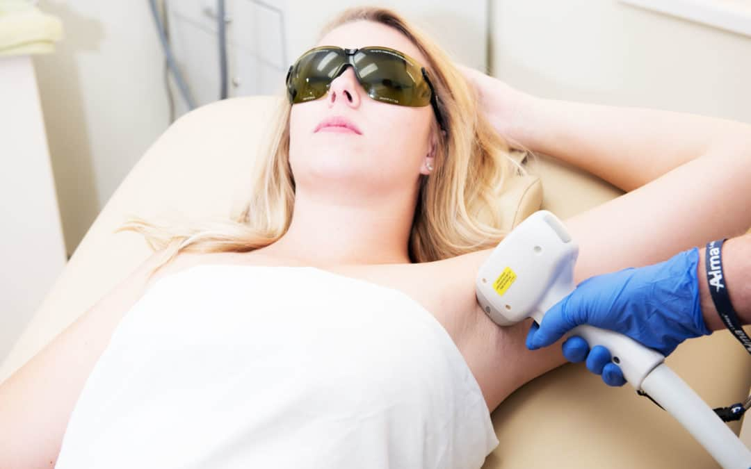 What is Laser Hair Removal?