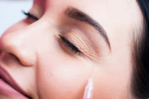 Botox side-effects | Montrose Dermatology